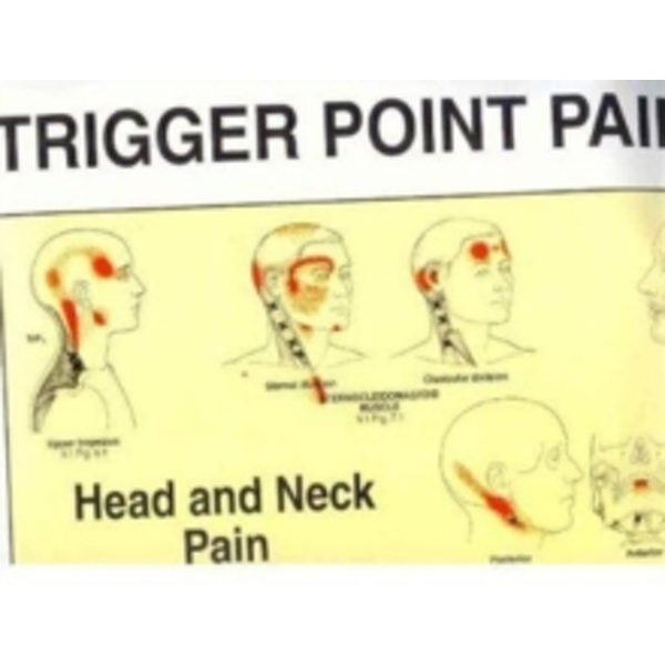 Trigger Point Pain Patterns Wall Charts by David G. Simons, Janet G. Travell (Fold-out book or chart, 1994)