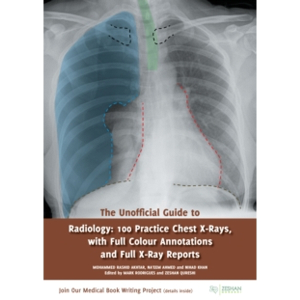 The Unofficial Guide to Radiology : 100 Practice Chest X-Rays