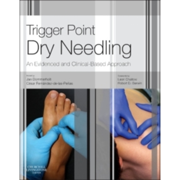 Trigger Point Dry Needling: An Evidence and Clinical-Based Approach by Elsevier Health Sciences (Hardback, 2013)